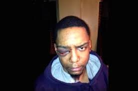 Taj Patterson after his beating.