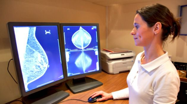 Life-Saving Screening: A radiology technician examines a mammography test.