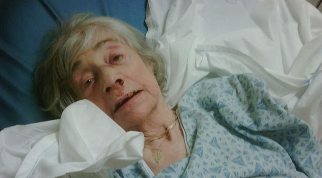 Brutal Attack: Ursula Nelson, 89, recovers in hospital bed after being beaten by a home care attendant.