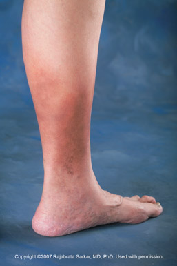Skin Discoloration On Legs | The Vein Doctors