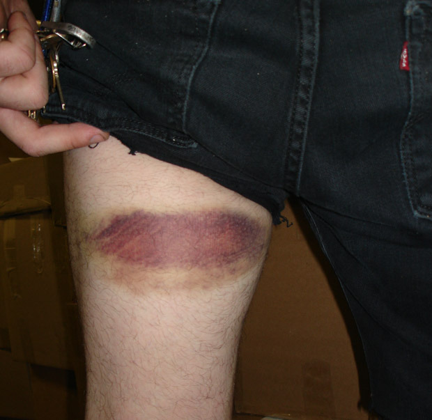 Photographer bruise from Maryland Death Fest