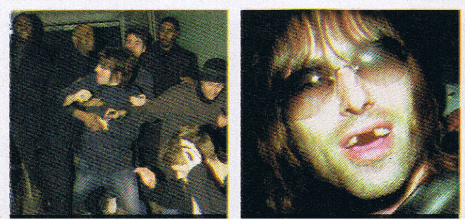 liam gallagher teeth munich fight
