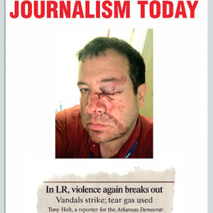 A Battered Local Face Depicts Journalism 2020