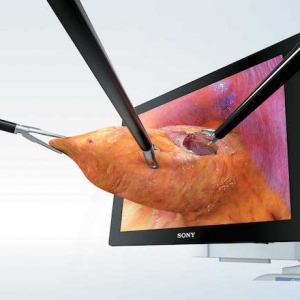 Baptist Health Benefiting from 3D Surgery Technology