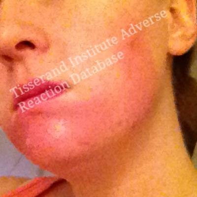 Irritation and allergic reactions - Tisserand Institute