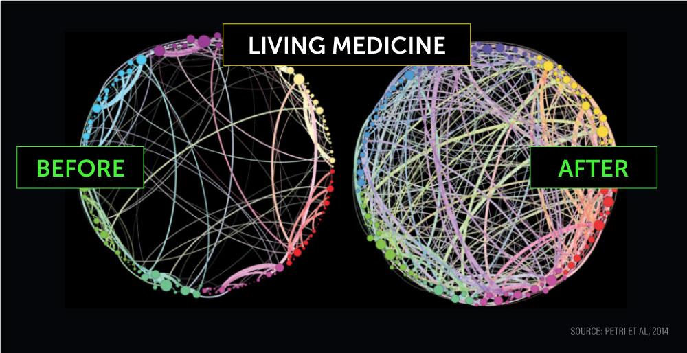 neural pathway