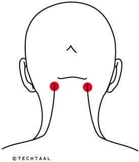 pijn nek achterhoofd