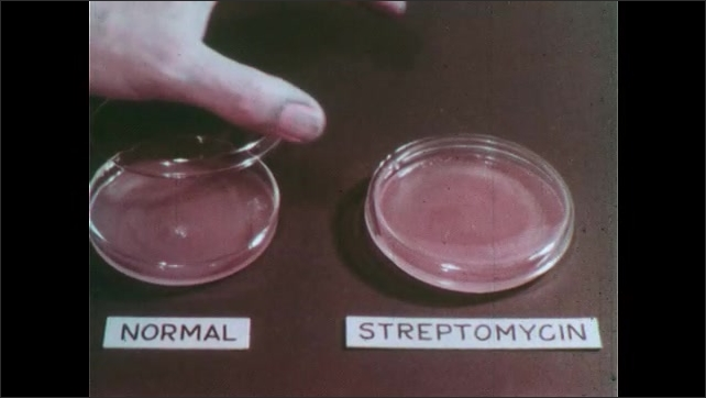 1960s: Hand takes lids off petri dishes.