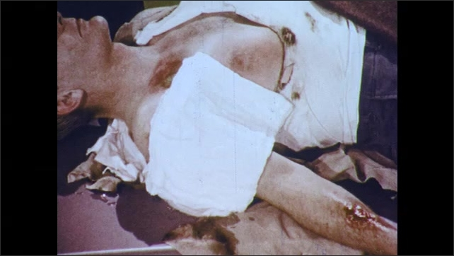 1970s: Man with tattered clothes and third degree burns lays on table. Doctor covers burns with wet dressing of gauze or bandage material.