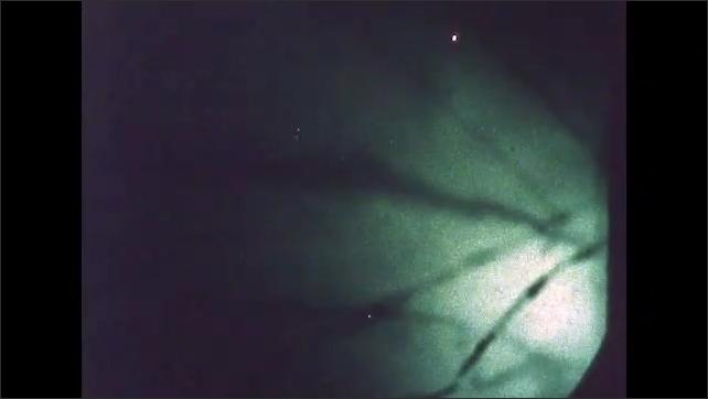 1960s: UNITED STATES: aluminium under microscope. Dislocations in surface under microscope. Properties of duralumin under microscope