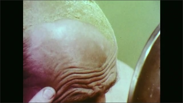 1970s: Man with brown cream on head, looks at bald spot in mirror.