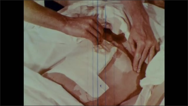 1960s: Nurse pulls back sheets from patient in bed and begins removing bandage around abdomen.
