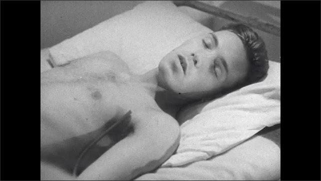 1940s: Patient lies in bed, head tosses and turns. Patient speaks with eyes closed, breathing, falling unconscious and hypnotized with a tense brow.