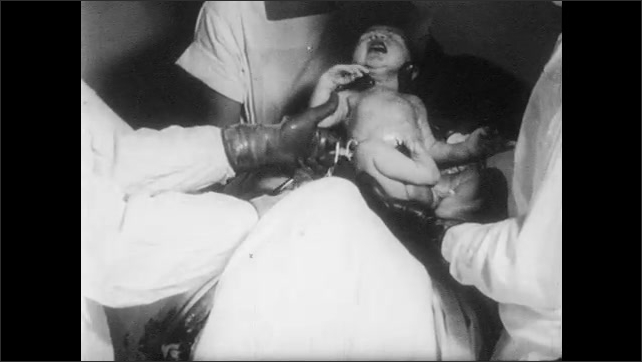 1950s: UNITED STATES: hands tie umbilical cord of baby. Doctor cuts umbilical cord.