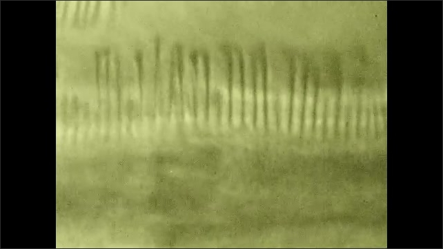 1930s: Tiny hairs move. Pointer points to section on drawing of cross section of throat.