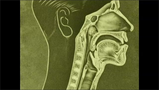 1930s: Drawing of cross section of throat with labels for adenoids, tonsil, pharynx, larynx, trachea, and esophagus.