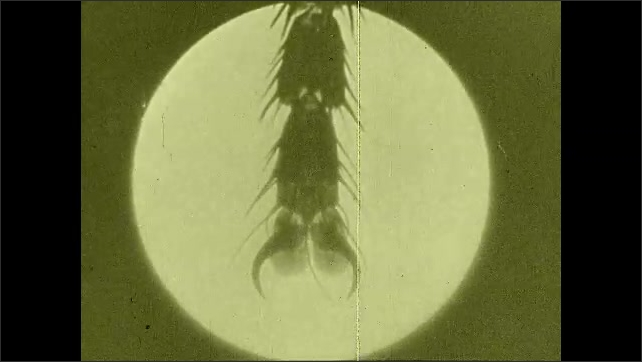1930s: UNITED STATES: view of fly foot. Transmission of disease via fly foot. View through lens of fly eye. Hairs on fly's leg. Fly tracks on sterile gel plate