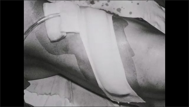 1950s: UNITED STATES: dressing of chest and drain. Torso with chest drain in situ