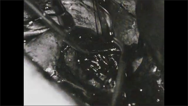 1950s: UNITED STATES: sutures used as sling for organ during dissection