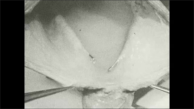 1930s: Cut bladder is filled with liquid. Pins are put in the bladder to hold it open.