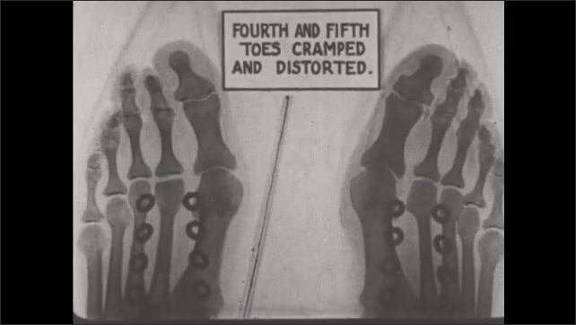 1930s: UNITED STATES: Grossly deformed feet. Images of feet and bones. Fourth and fifth toes cramped and distorted.