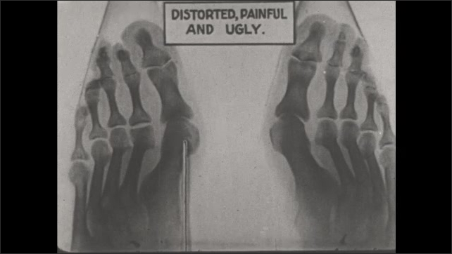 1930s: UNITED STATES: distorted, painful and ugly feet on x-ray. Pointer and feet.