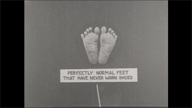 1930s: UNITED STATES: perfectly normal feet that have never worn shoes. Soles of feet
