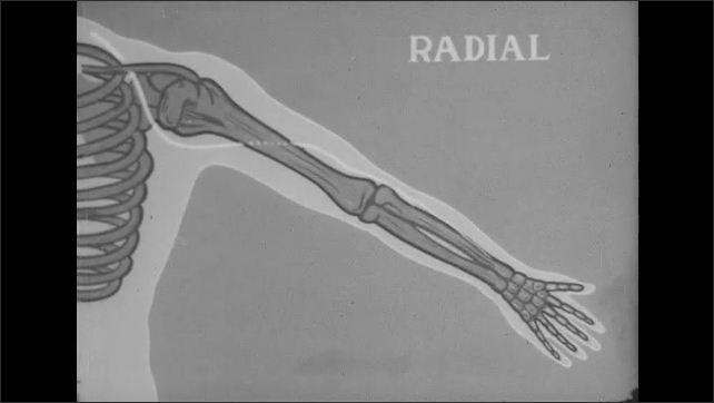 1950s: Man sits on hospital bed, nurse takes crutch down from bed, shows it to man. Diagram of human skeleton.