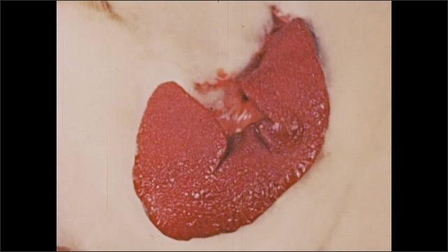 1960s UNITED STATES: Spleen shrinks. Effect of adrenaline on spleen.