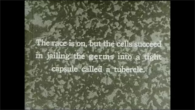 1930s: UNITED STATES: TB germs in tubercle. Animation of tuberculosis spread under microscope. Invasion of cells