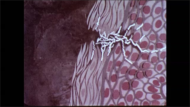 1970s: Animation, organisms infecting a body through skin. Bacteria travelling into tissue.