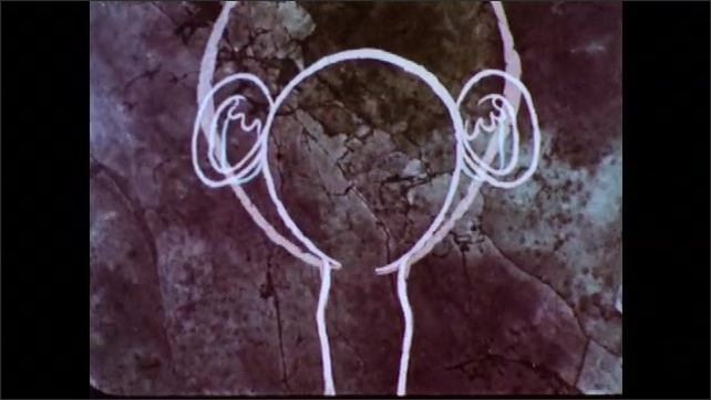 1970s: Animation, diagram of female sex organs, infection in fallopian tubes. Reproductive system changes to baby in uterus.