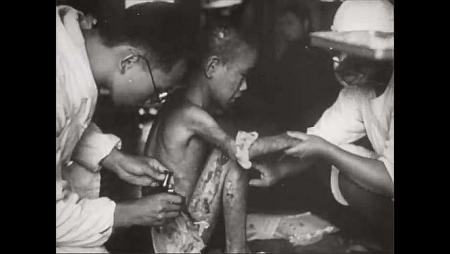 1940s: City in ruins. Dead bodies lay among ruins. Doctors poke at dead body. Doctors examine injured child. Children with hair loss.