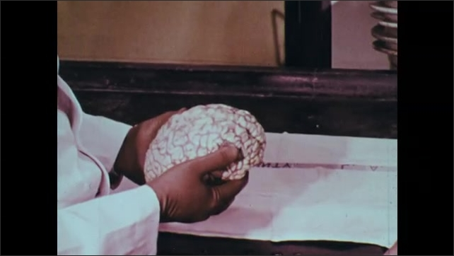 1960s: Close up, woman 's face covered in blood, broken windshield in foreground. Woman's face. Hands holding brain. Men talking looking at brain.