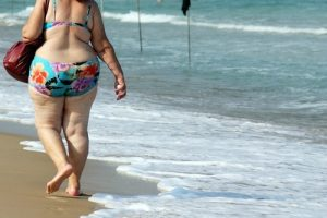 overweight woman with cellulite