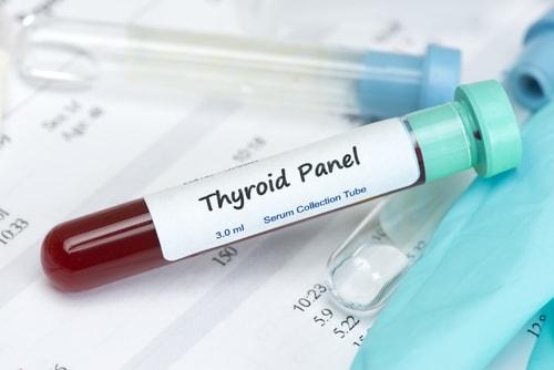 thyroid blood test for hypothyroidism