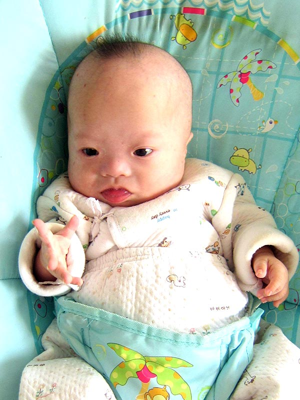 China Down Syndrome Adoption