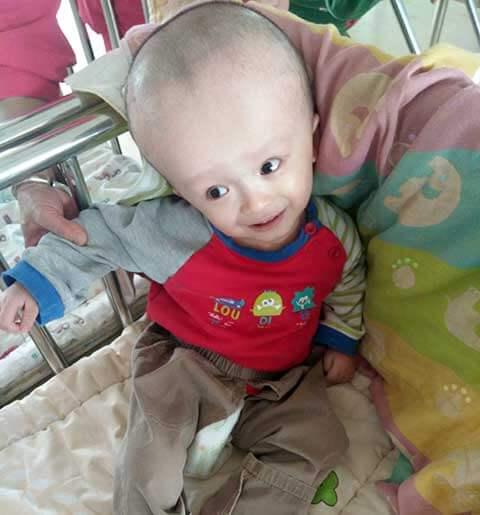 Waiting child hydrocephalus
