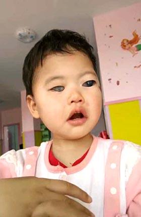 glaucoma adoption china