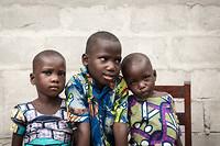 3 blinde kinderen voor de operatie.