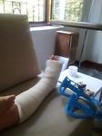 Een dag later gebroken been Tjitske