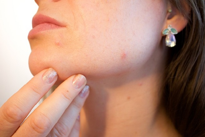 ayurvedic acne treatment