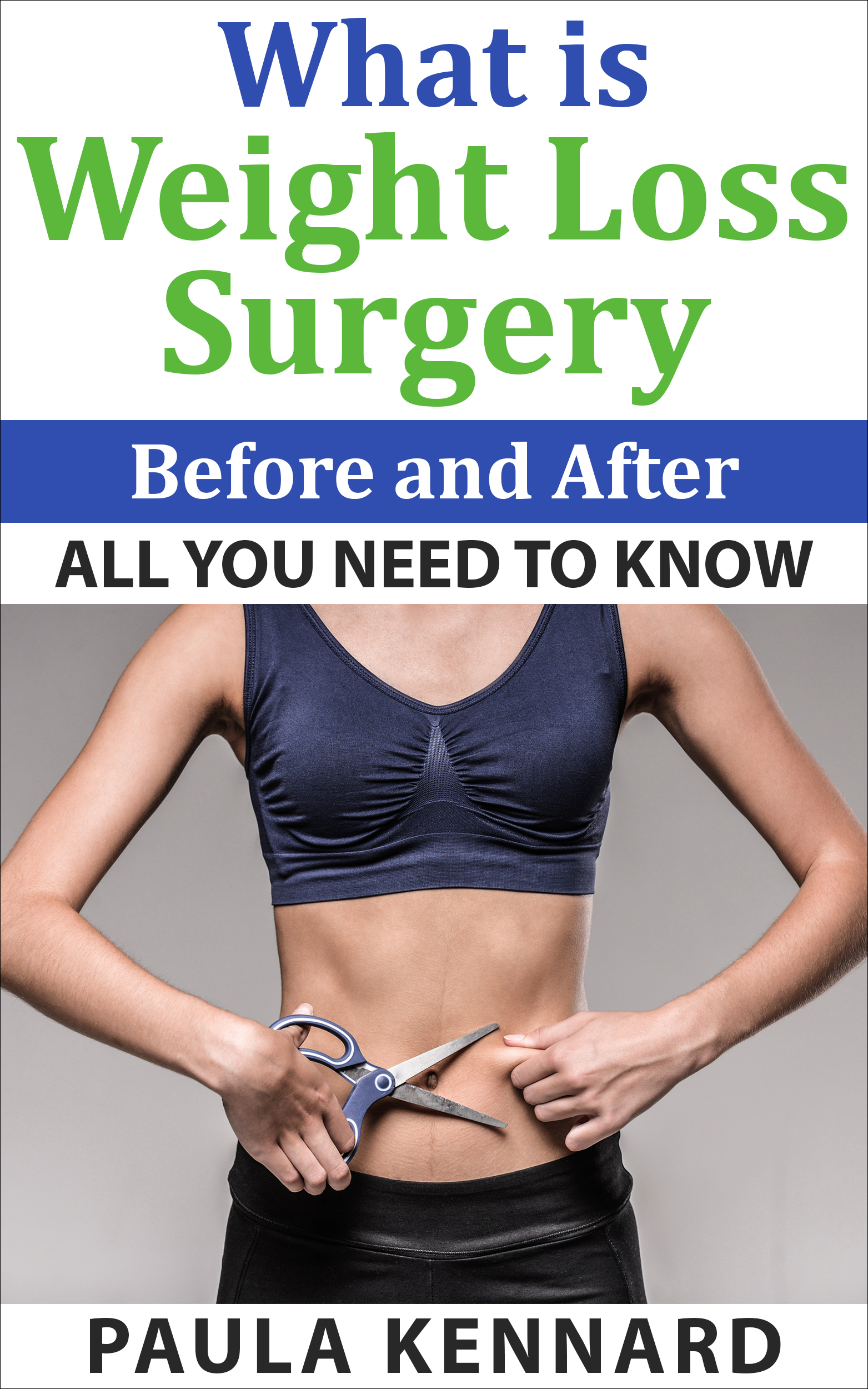 Weight loss surgery - everything you wanted to know - before and after