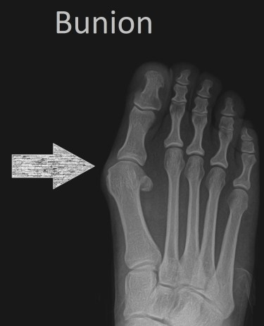 How to Fix a Bunion Without Surgery (4 Easy Tips)