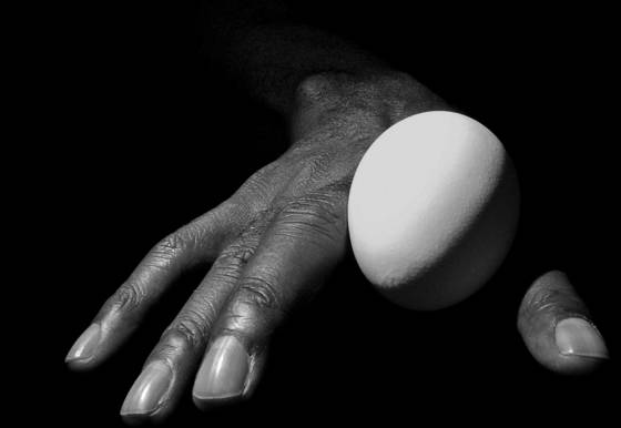 Bruce s hand with egg  1