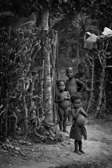 Malnutritioned children