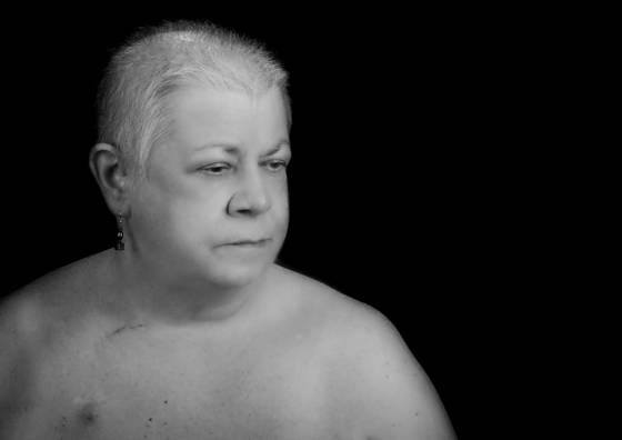 Ovarian cancer  j2