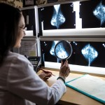 Montclair Breast Center Announces 100 Percent Early Diagnosis of Breast Cancer