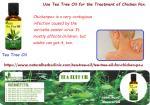 Tea Tree Oil for Chicken Pox Auburn WA