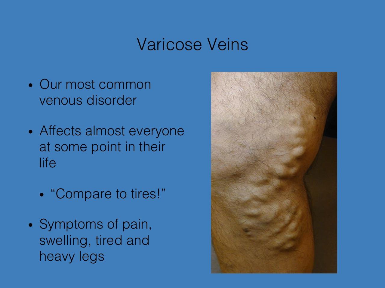 varicose bruise pe ires varicoză de coafură